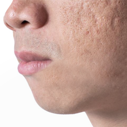acne scars dearborn