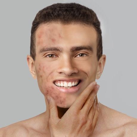 acne treatment dearborn