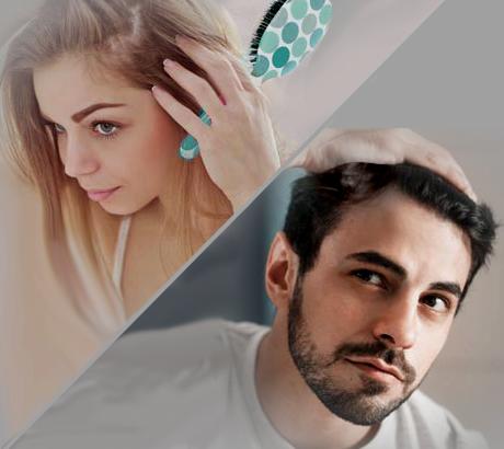hair loss dearborn