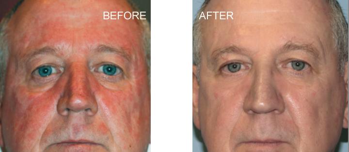 BBL Laser before & after