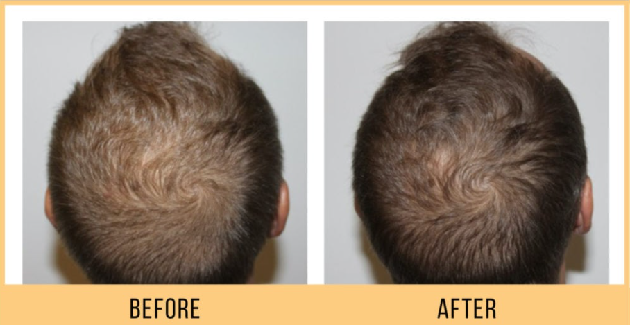 keravive hair loss treatment