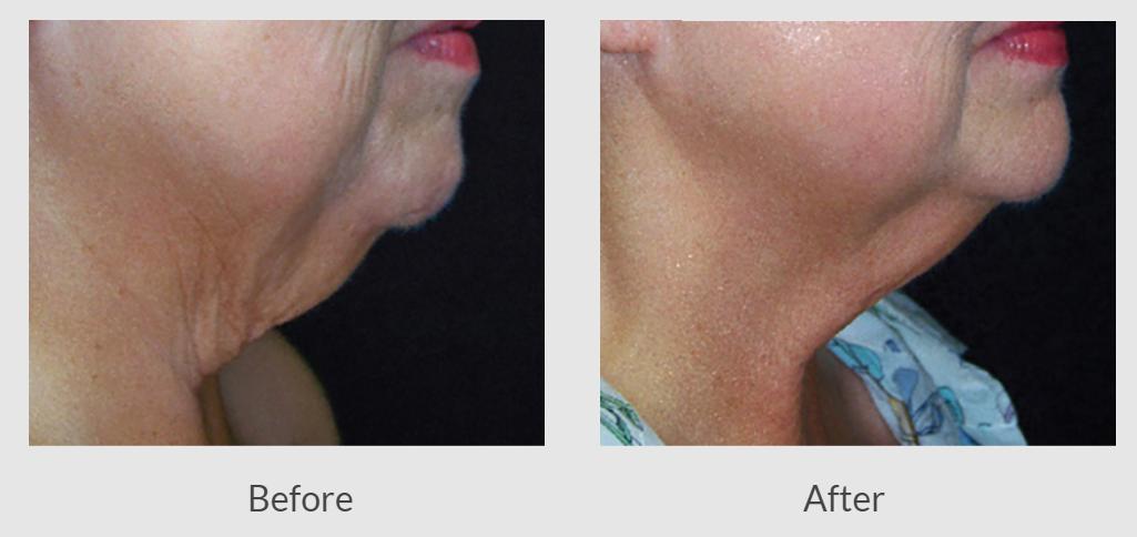 skin tightening dearborn